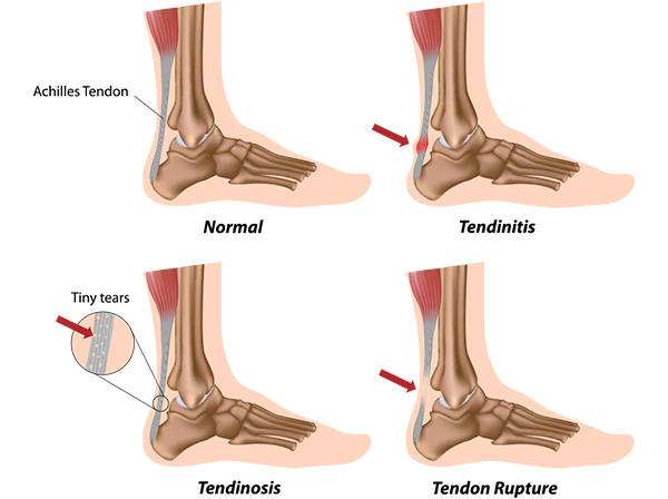 Normal versus diseased Achilles tendon of different stages.
