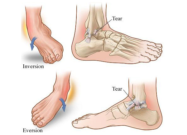 Inversion ankle sprains caused by inward turn of the foot are most common.