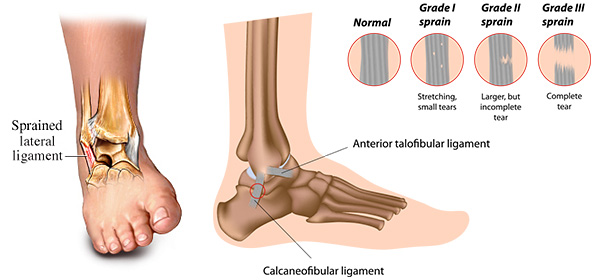 Ankle Sprains Dr Alice Wang
