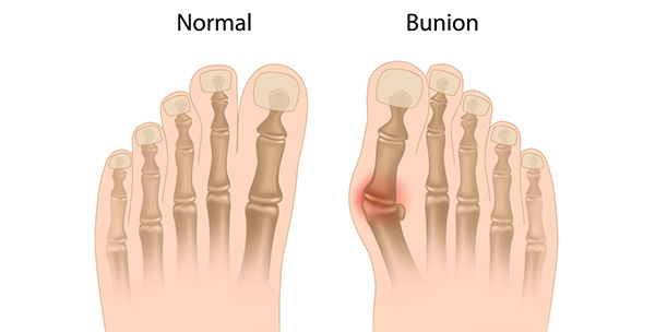 The big toe joint is malaligned in most bunion deformities.