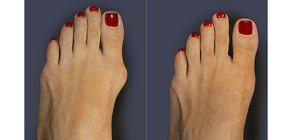 Before and after bunion surgery.