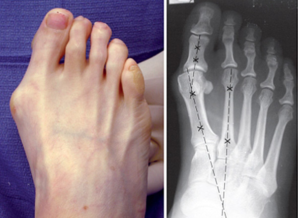 Some bunions are asymptomatic while others may experience pain over the