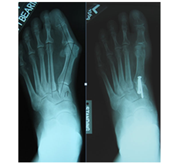 If pain persists despite conservative treatment, surgical correction of bunion can reduce pain significantly. Bunion surgery aims to re-align the big toe joint, improving its function.