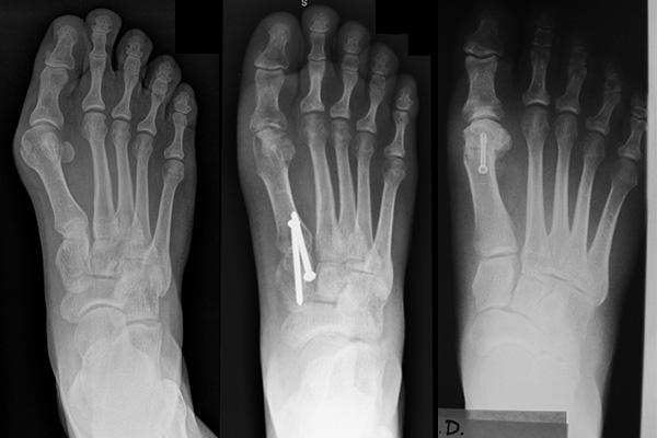 Before and after bunion surgery. Different types of bunion surgery is demonstrated.