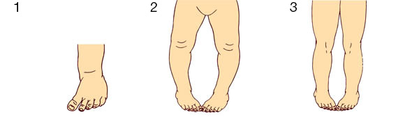 In-toeing gait conditions: matatarsus vanus (1), internal tibial torsion (2), and medial femoral torsion (3).
