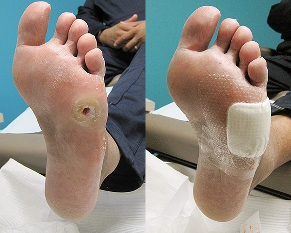 Ulceration in a diabetic patient with lack of sensation to his feet.