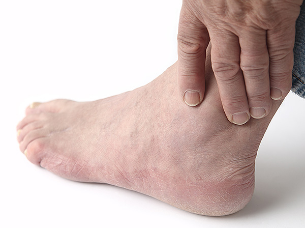 People with diabetes may be at risk for foot-related complications.