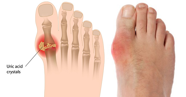 Uric acid crystals are deposited in the joint during an acute gout attack.  The big toe joint is commonly involved.