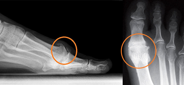 Bone spurs or overgrowths are often associated with arthritis in the big toe joint.