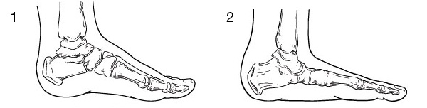 Comparing normal pediatric foot (1) and flatfoot (2).